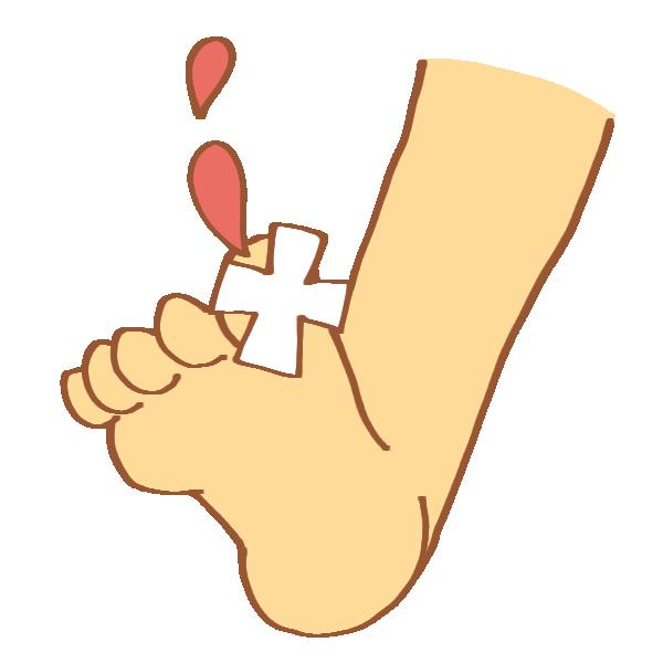 足指の怪我のイラスト